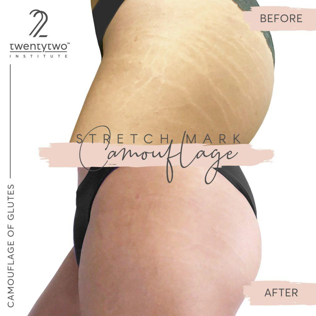 how-to-select-the-right-skin-pigment for stretch mark camouflage
